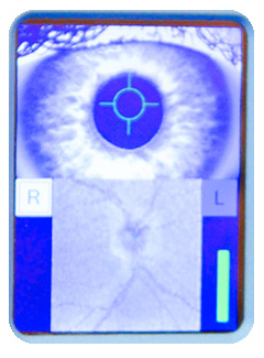 Technology Eye Exam